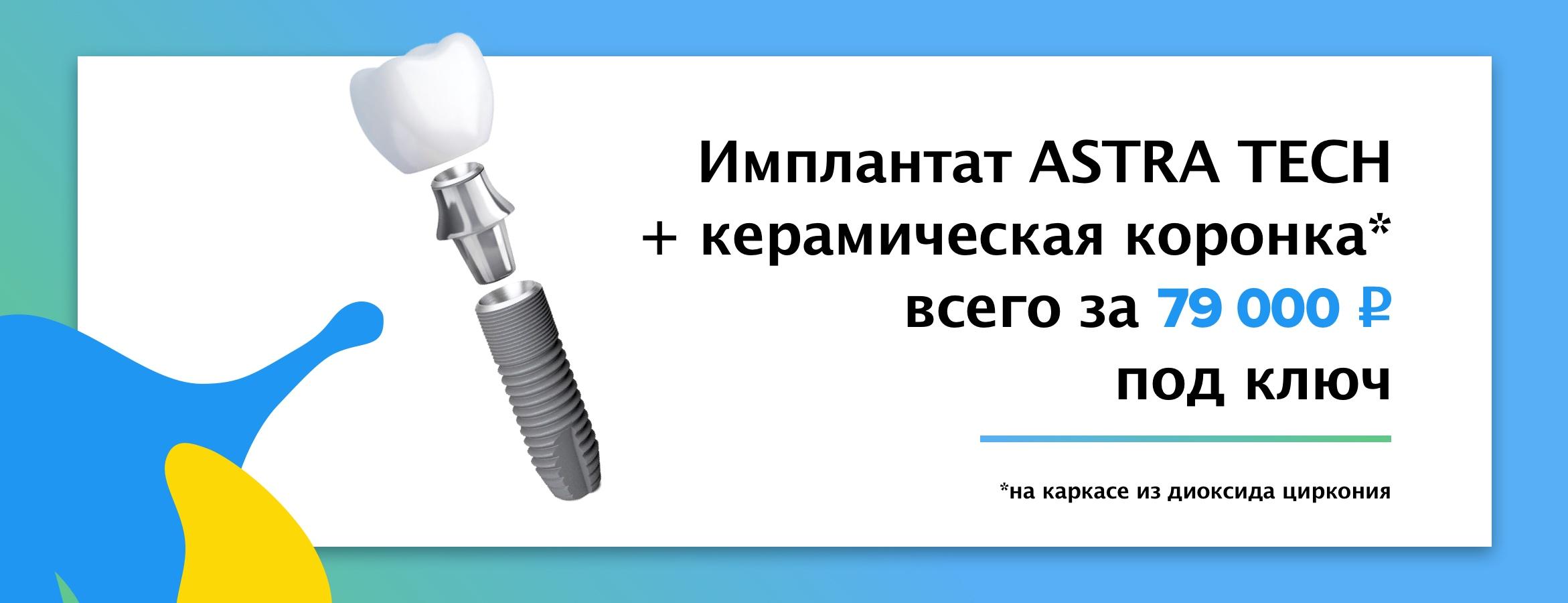 Имплантат Astra Tech + керамическая коронка под ключ