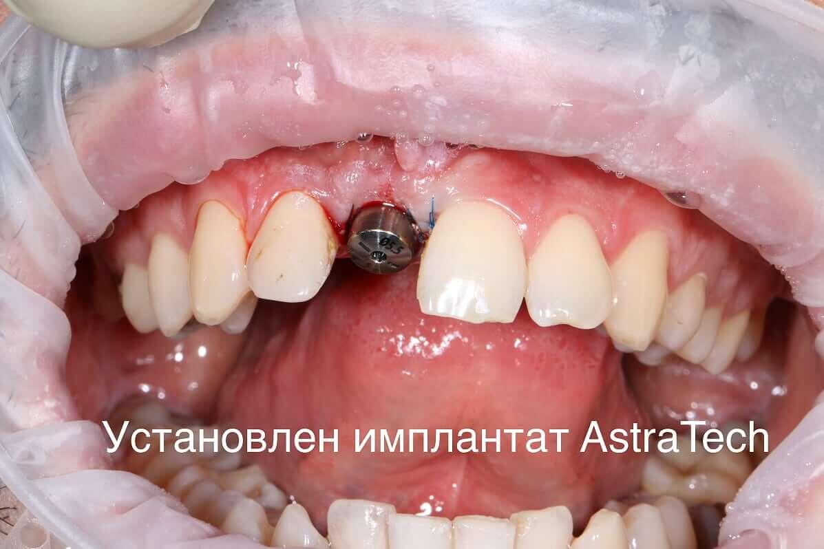 Установка имплантата Астратех