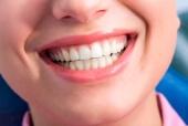 Для чего мы чистим зубы?