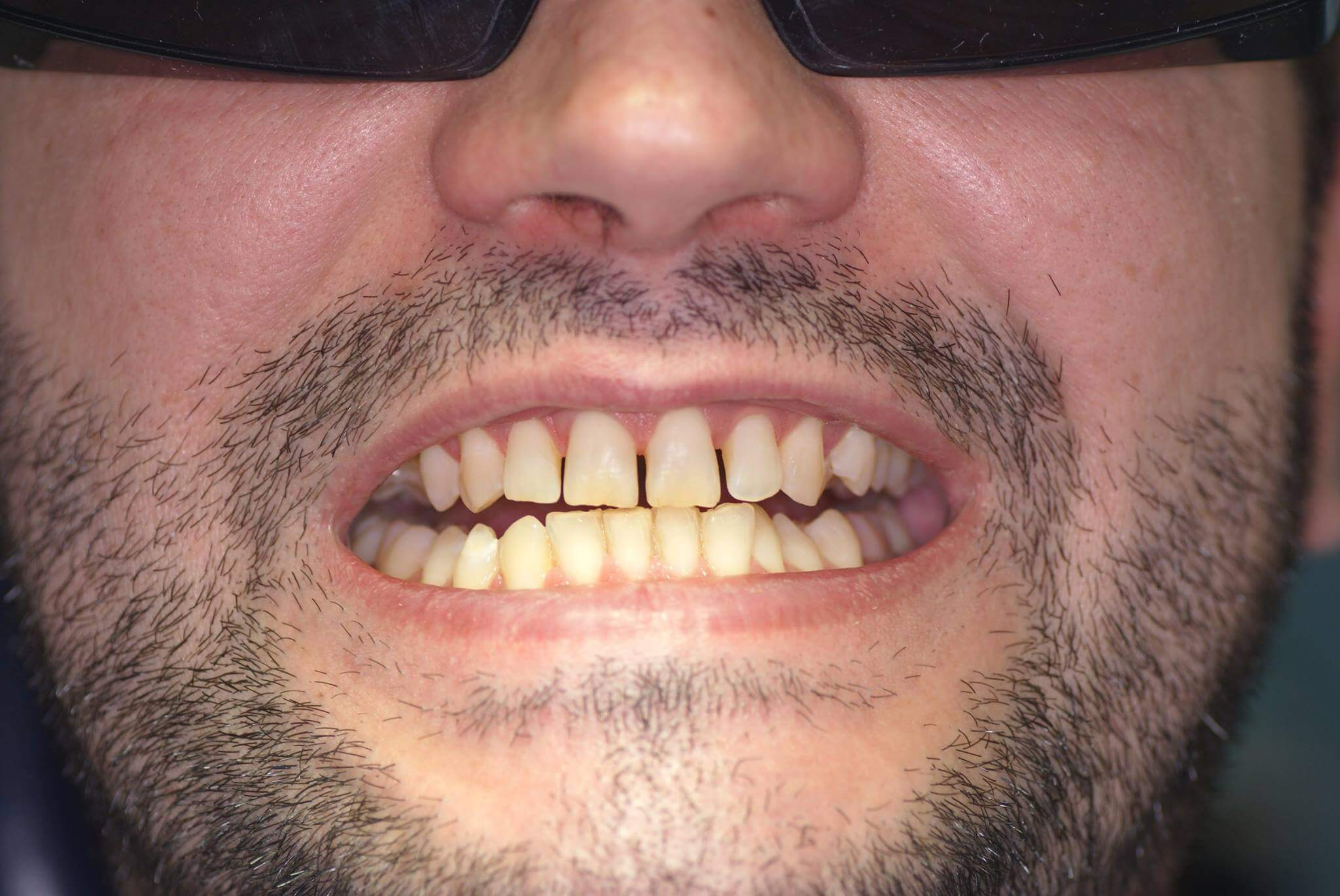 До лазерного отбеливания зубов