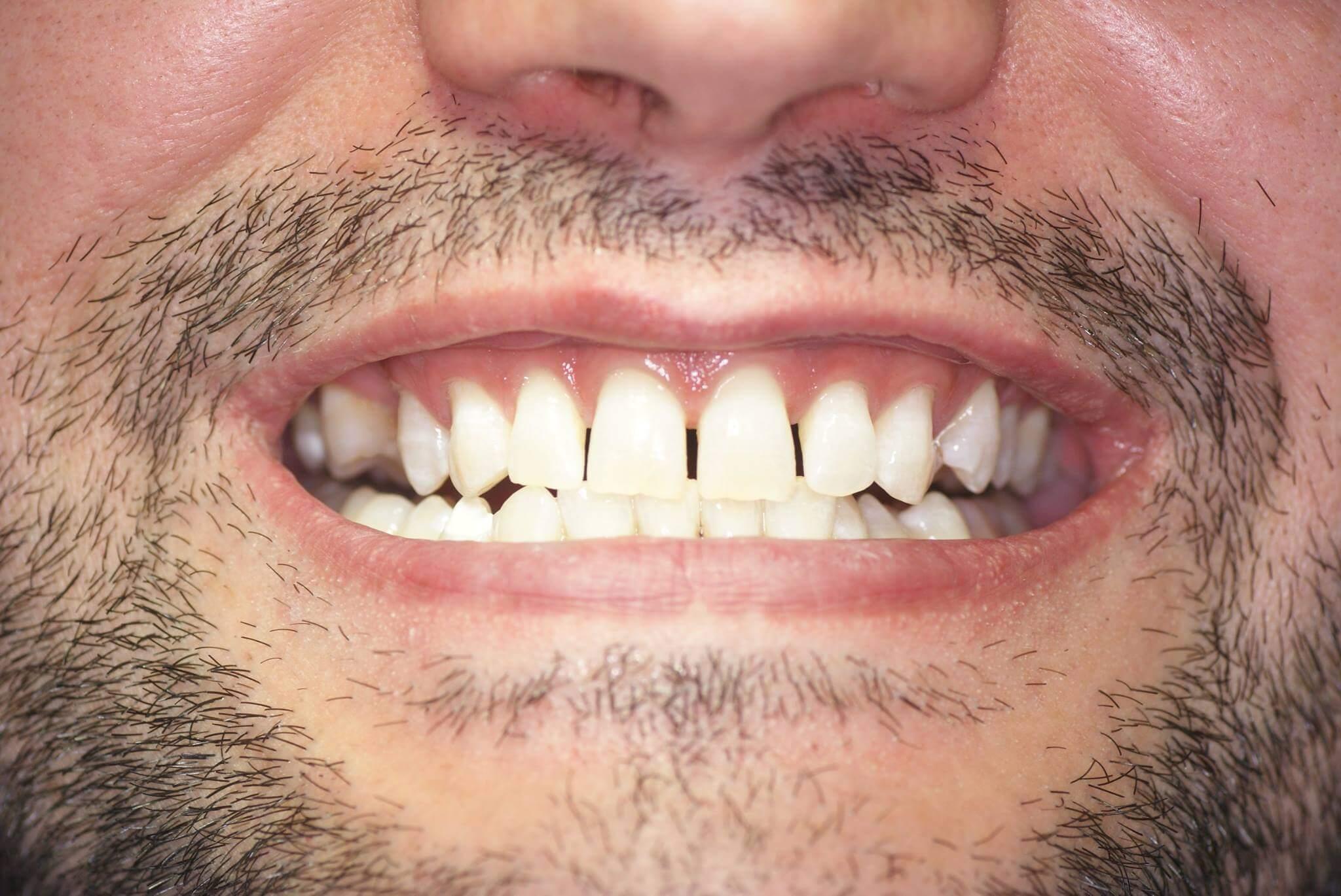 Результат отбеливания зубов системой Opalescence Boost
