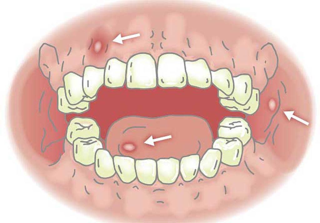Повреждение слизистой полости рта